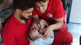 Syrian conjoined twins die awaiting transfer abroad