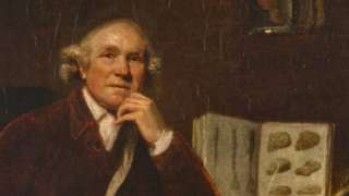 Doctors confirm 200-year-old diagnosis